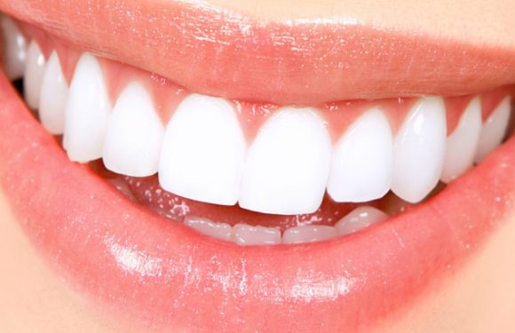Average Cost Of Teeth Whitening