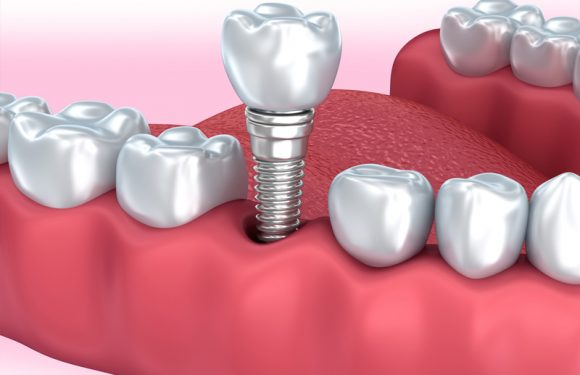 Do You Know Why A Dental Implant Can Fail?