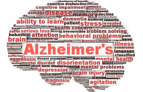BRAIN MAXIMA REVIEW – A Healthy Alzheimer Free Tomorrow